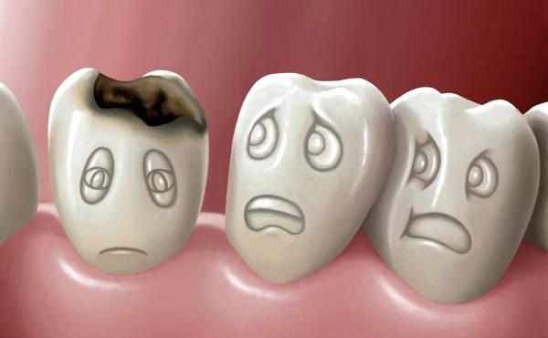 Боли при кисте зуба - 5
